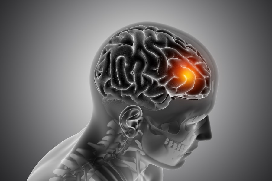 A view of the man's brain with a orange highlighted place